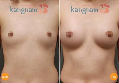 Kết quả nâng ngực tại BVTM Kangnam1