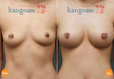 Phẫu thuật nâng ngực chảy xệ có an toàn không