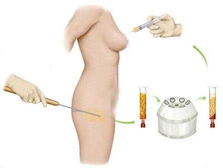 Cách bơm ngực
