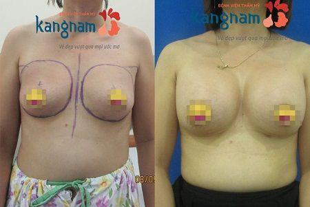 hình ảnh khách hàng sau nâng ngực tại kangnam