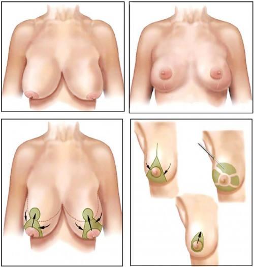 cấp độ chảy xệ của ngực