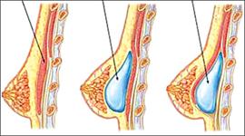 Có nên phẫu thuật nâng ngực chảy xệ không? Đánh giá Chuyên Gia