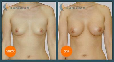 Đặt túi độn ngực có an toàn không?