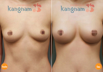hinh-anh-tham-nguc-tai-tham-vien-kangnam (1)