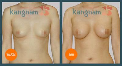 hinh-anh-tham-nguc-tai-tham-vien-kangnam (15)
