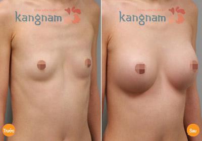 hinh-anh-tham-nguc-tai-tham-vien-kangnam (2)