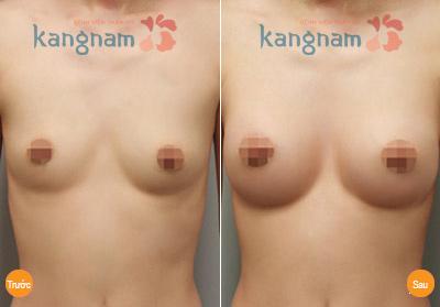 hinh-anh-tham-nguc-tai-tham-vien-kangnam (3)