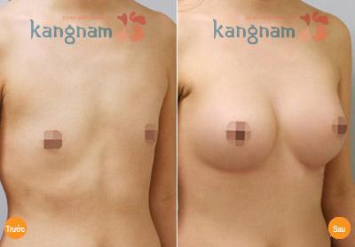 hinh-anh-tham-nguc-tai-tham-vien-kangnam (5)
