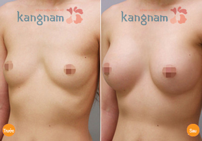hinh-anh-tham-nguc-tai-tham-vien-kangnam (8)