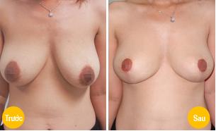 treo ngực sa trễ