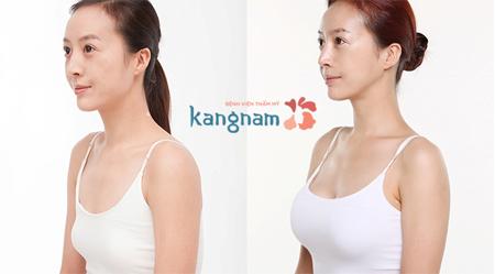 phẫu thuật nâng ngực bằng mỡ tự thân ở đâu tốt