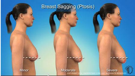 nâng ngực chảy xệ 1