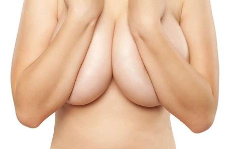 Phẫu thuật nâng ngực chảy xệ giá bao nhiêu67