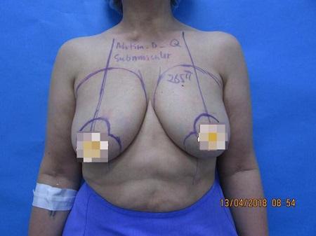 Phẫu thuật nâng ngực chảy xệ giá bao nhiêu13