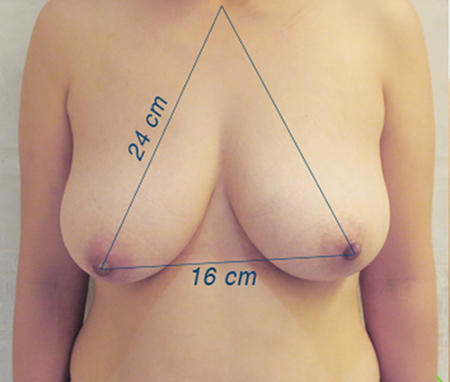 Phẫu thuật nâng ngực chảy xệ giá bao nhiêu7899