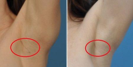 Nâng ngực chảy xệ có để lại sẹo không2