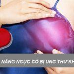 Hoang mang: Nâng ngực có bị ung thư? Thực hư ra sao?