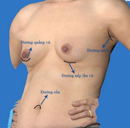 Phẫu thuật nâng ngực đường nào tốt nhất 1
