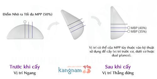 nang-nguc-loai-nao-tot-nhat-hien-nay (6)