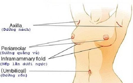 nâng ngực nội soi3
