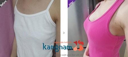 nâng ngực nội soi7