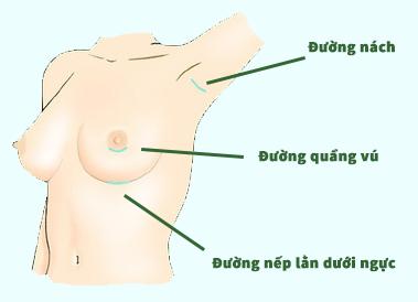 Các đường rạch thường được lựa chọn để đưa túi ngực vào bên trong 5
