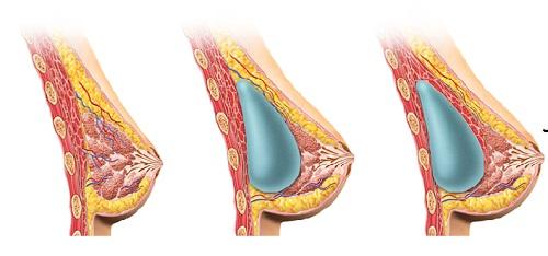 phẫu thuật nâng ngực nội soi có tốt không