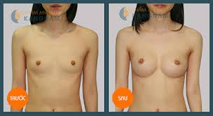 công nghệ nâng ngực mới