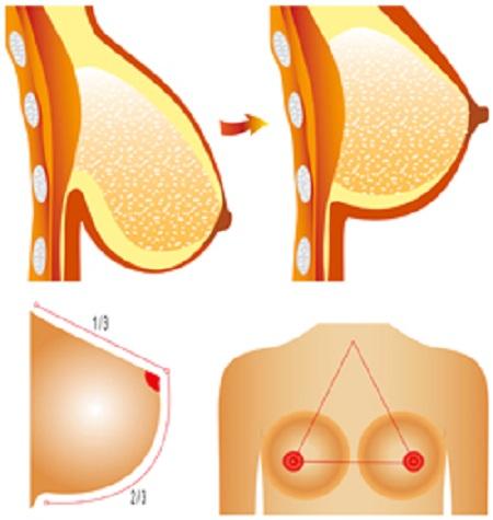 Mô phỏng cách treo ngực sa trễ bằng chỉ1