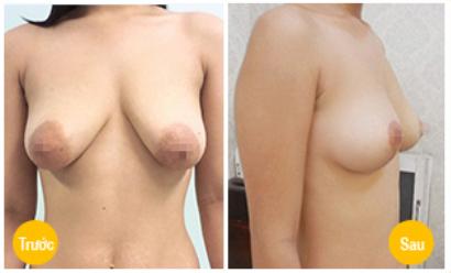 nâng ngực sa trễ