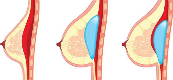 Nâng ngực Y line có đau không