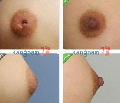 phau-thuat-keo-num-vu-bi-tut-co-dau-khong (1)