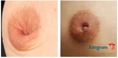 phẫu thuật kéo núm vú bị tụt có đau không? 4