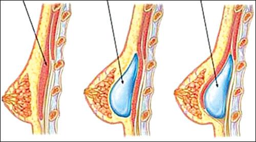 Có nên phẫu thuật nâng ngực chảy xệ không ?