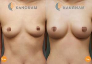 Nâng ngực chảy xệ được bao lâu?