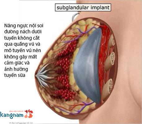 nâng ngực nội soi có tốt không?4