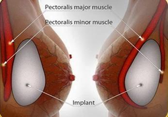 phẫu thuật nâng ngực nội soi được bao lâu 1