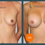 Cách nâng ngực chảy xệ sau sinh hiệu quả, an toàn?