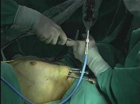 phương pháp nâng ngực an toàn