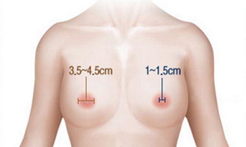 thu nhỏ quầng vú an toàn hiệu quả
