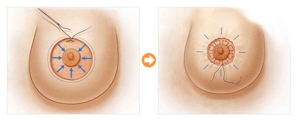 Phẫu thuật thu nhỏ quầng vú có an toàn không