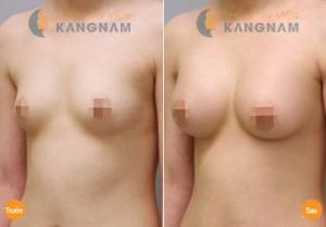 phương pháp nâng ngực mới nhất