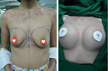 treo ngực sa trễ 3