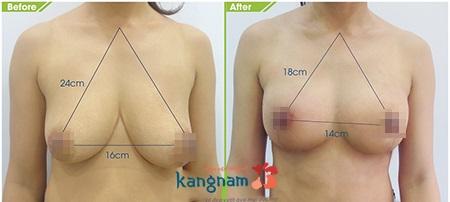 treo ngực sa trễ 4