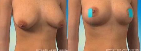 treo ngực sa trễ 1