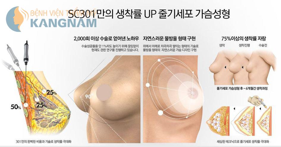 Phẫu thuật bơm ngực
