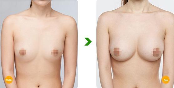 Kết quả nâng ngực bằng mỡ tự thân tại Kangnam1