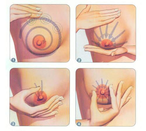 các cấp độ chảy xệ của ngực