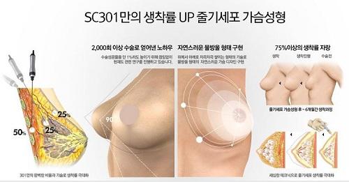 có nên nâng ngực bằng mỡ tự thân không
