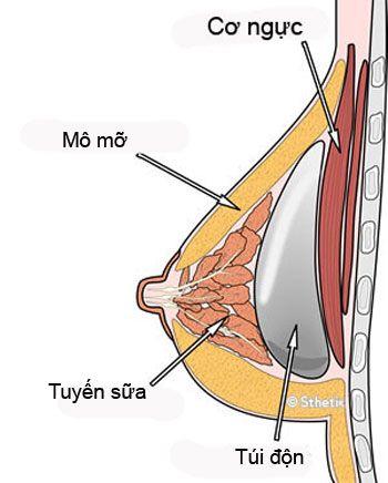 đặt túi ngực trên cơ hay dưới cơ
